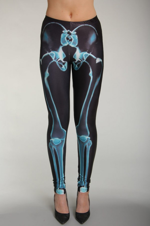 Svarta Leggings - X-Ray